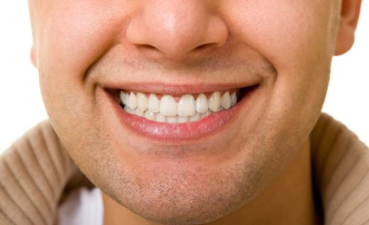 man smiling and showing his dental implants