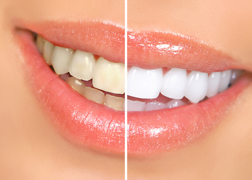 teeth whitening services dr. loren grossman